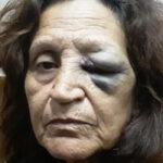 A juicio los policías que desfiguraron a una familia por no tener barbijo